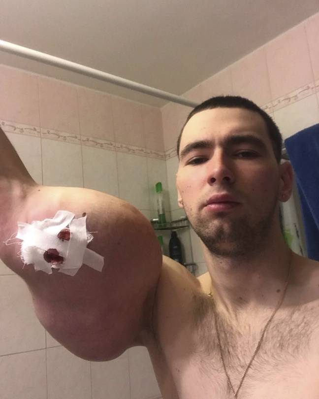 Kirill Tereshin shows drainage in his right arm in early September
